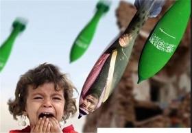روایتی از فجایع انسانی در یمن در طول نزدیک به ۴ سال حمله سعودیها به این کشور